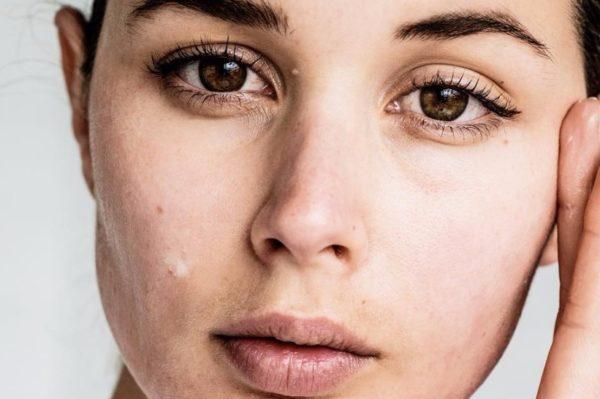 Ampule: proizvod koji će vaša koža jednostavno obožavati