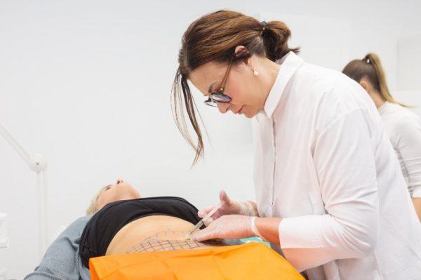 Poliklinika Sinteza: Lipoliza trbuha pomaže nam bezbolno se riješiti masnih naslaga