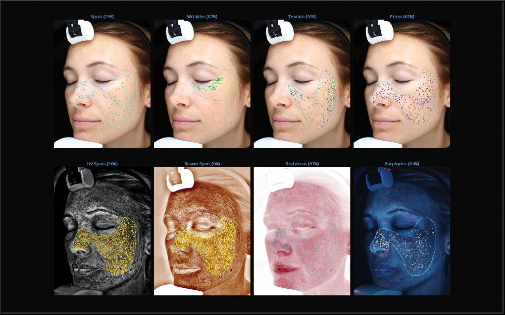 Poliklinika Bagatin VISIA uređaj za analizu kože